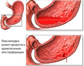 Прободная язва желудка - это самое грозное осложнение, что случается