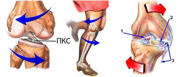 связки в коленном суставе как лечить народными средствами