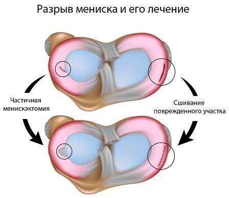 Разрыв мениска и лечение