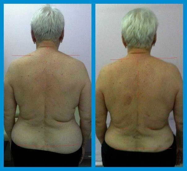 Распространенный деформирующий спондилез до и после лечения, фото