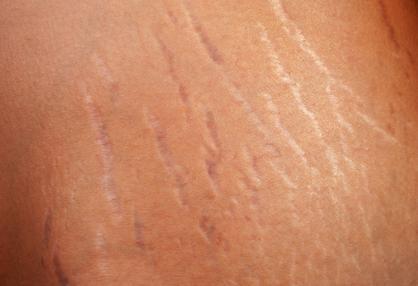 Растяжки на спине - фото