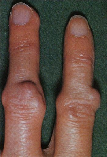 Ревматоидные узелки на пальцах кисти при ревматоидном артрите