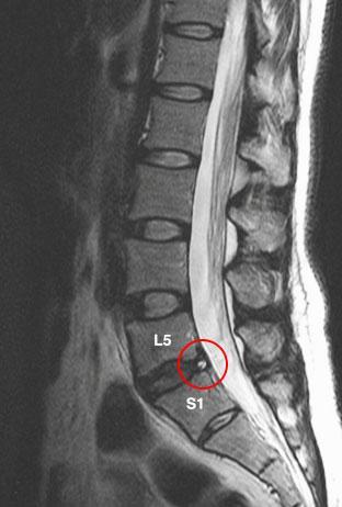 Рентгеновский снимок грыжи поясничного отдела
