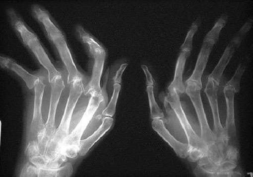 Рентгеновский снимок ревматоидного полиартрита