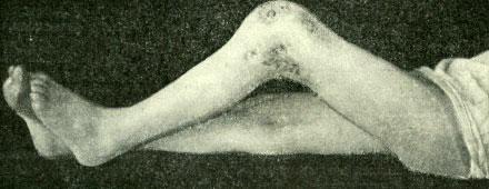 Свищи при туберкулезе коленного сустава
