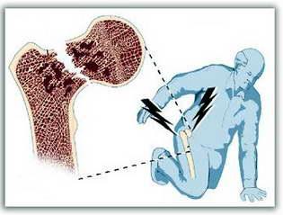 Склонность к переломам костей