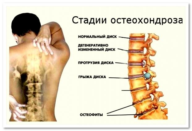 Остеохондроз симптомы шейного отдела как лечить