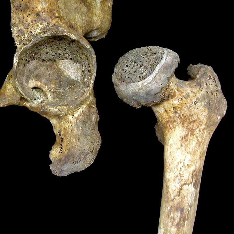 Сустав и кости, поврежденные коксартрозом