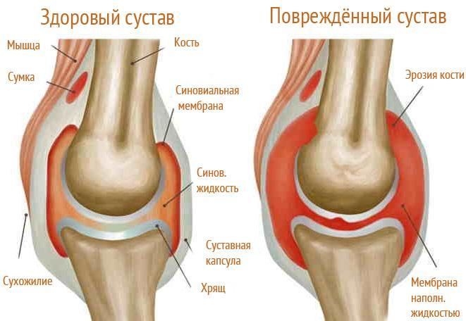 Схема здорового и поврежденного суставов