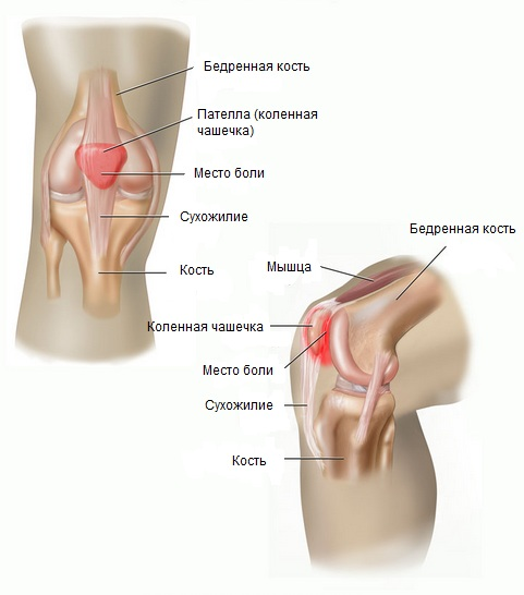 Схема коленного сустава