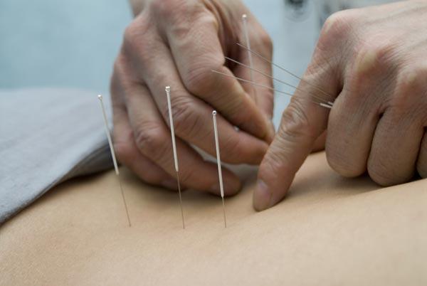 Считается, что иглоукалывание, или акупунктура, помогает справиться с множеством недугов