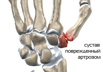 Так выглядит сустав, поврежденный артрозом