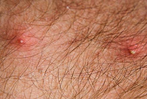 Так выглядят воспалившиеся укусы вшей