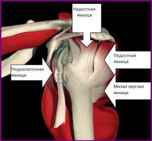 Тендинит подостной и малой круглой мышцы