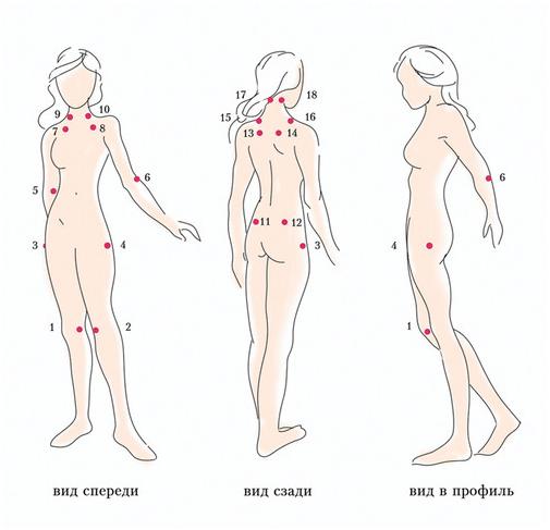 Типичные локальные болевые синдромы при фибромиалгии
