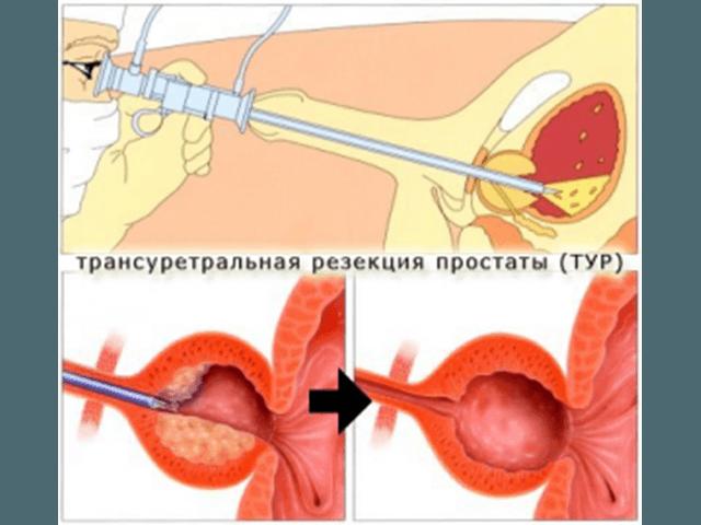 Эндоскопическое удаление аденомы предстательной железы