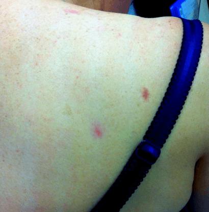 Фото изменений кожи спины у пациентки с активным хроническим гепатитом С