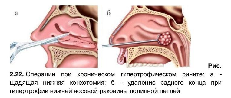 Хирургическое лечение гипертрофического ринита при выраженном процессе