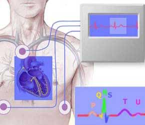 Электрофизиологическое исследование