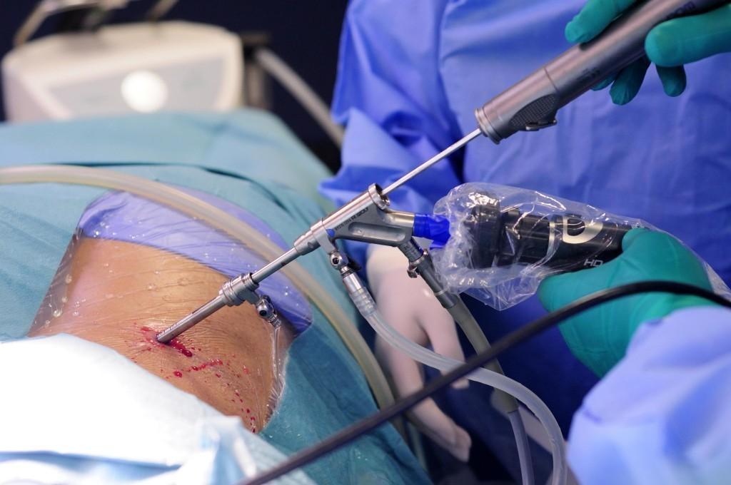 Эндоскопическое удаление грыжи позвоночника