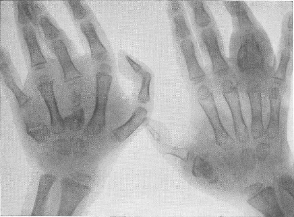 Spina ventosa tuberculosa — множественные поражения фаланг и пястных костей у ребенка с генерализованным гематогенным туберкулезом