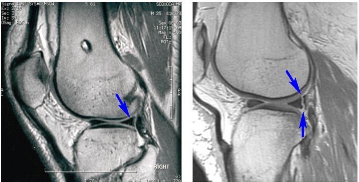 Слева – нормальный неповрежденный мениск (синяя стрелка). Справа – разрыв заднего рога мениска (две синие стрелки)
