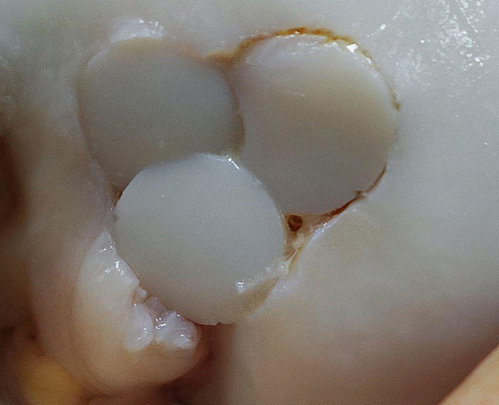 Варианты «мозаичной» костно-хрящевой аутопластики