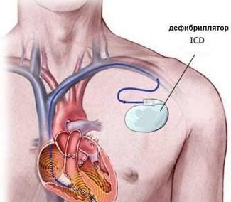 Имплантация кардиовертеров-дефибрилляторов