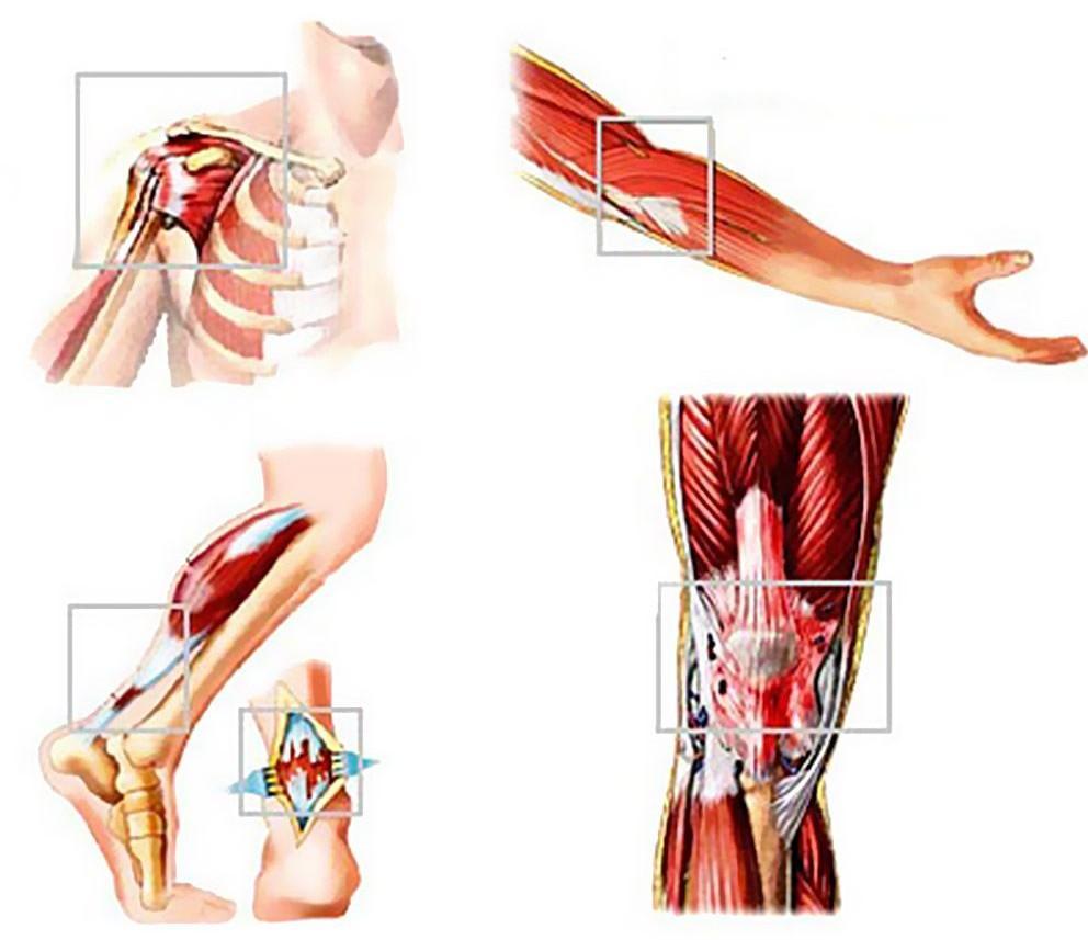 Воспаление ахилового сухожилия