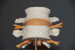 1 стадия — повреждение пулытозного ядра межпозвоночного диска