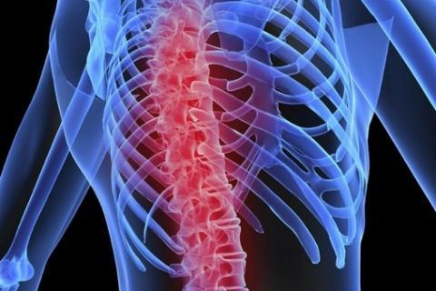 Spondyl означает позвоночник, а osis - нарушения
