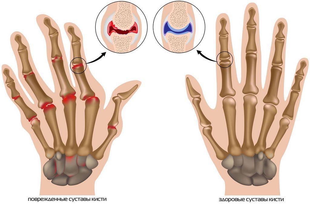болезненность мелких суставов кистей рук