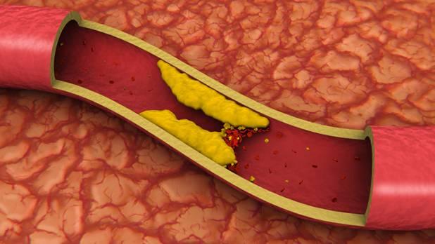 Атеросклероз и потенция