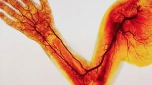 Болезнь периферических артерий кровеносной системы