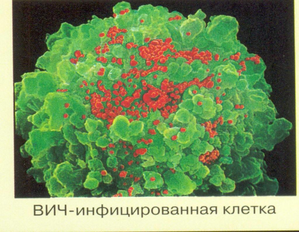 ВИЧ-инфицированная клетка