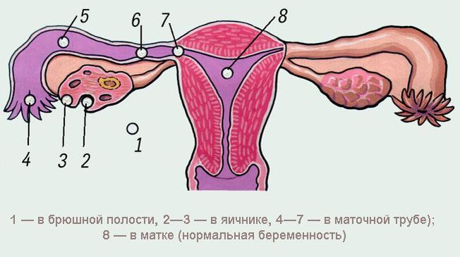 У беременной болит яичники