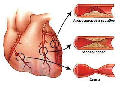 В большинстве случаев стенокардия обусловлена атеросклерозом коронарных артерий сердца