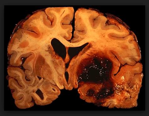Кровоизлияние в мозг у беременных 72