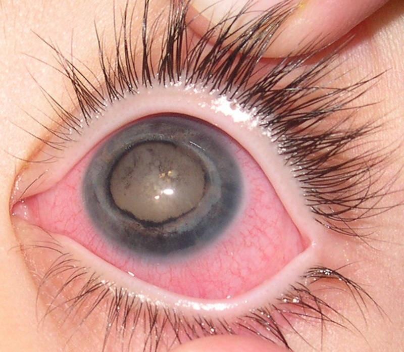 Глаукома может рецедивировать