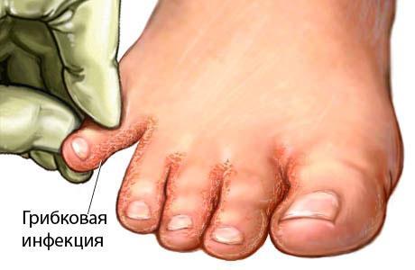 Сколько и чем лечить грибок ногтей на ногах