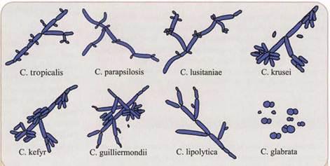 Грибы рода Candida (представлены овальными почкующимися дрожжевыми клетками, псевдогифами и септированными гифами) Показать на странице Открыть в полном размере
