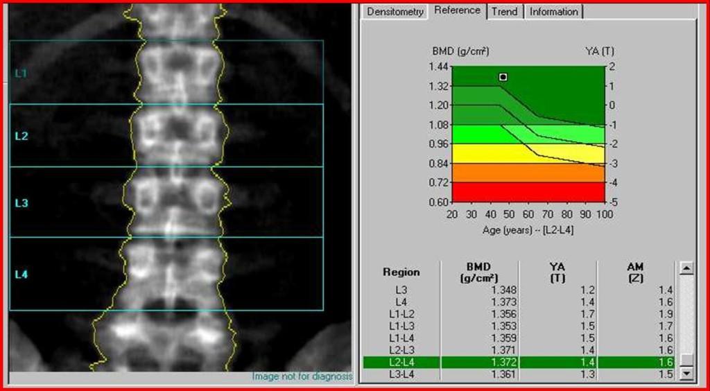 Двухэнергетическая рентгеновская денситометрия (абсорбциометрия)