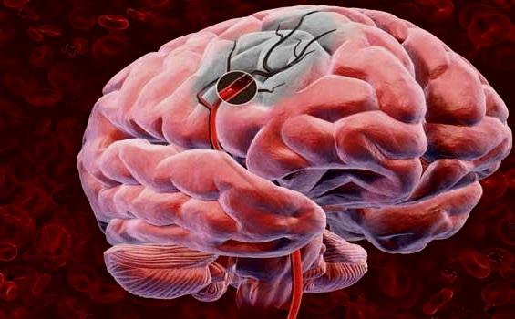 Ишемический инсульт головного мозга - лечение и реабилитация
