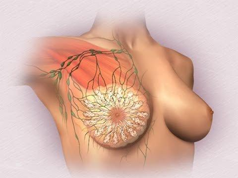 Как лечить мастопатию эффективно