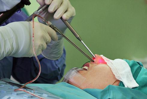 Лечение гайморита хирургическое