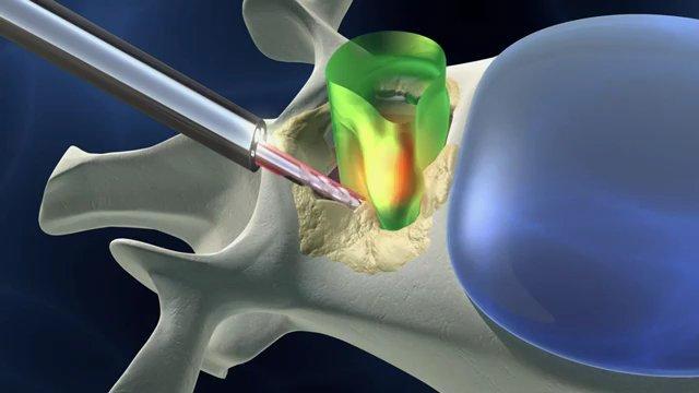 Лечение стеноза. Хирургические методы