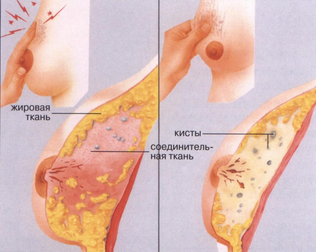 Как проверить грудь 3 фотография