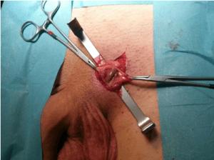Методика Мармара, или операция с мини-доступом