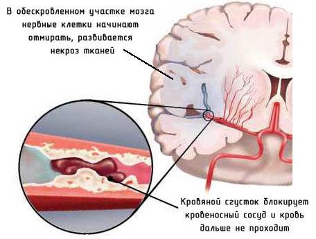 Микроинсульт