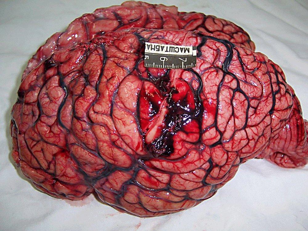 Мозг человека после инсульта
